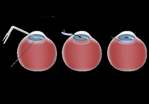 Refractive Lens Exchange diagram