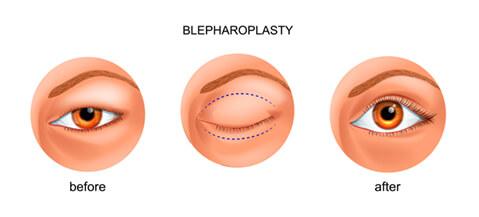 Blepharoplasty diagram