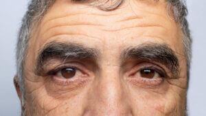 Close up of older man's eyes