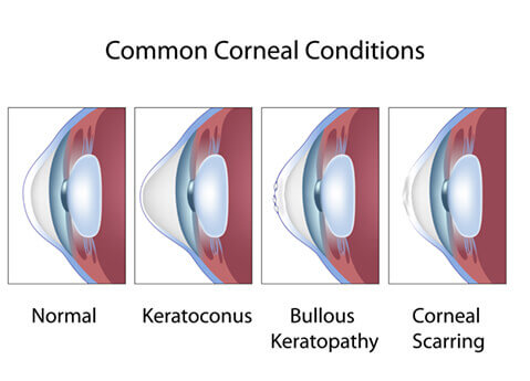 Corneal Conditions Diagram