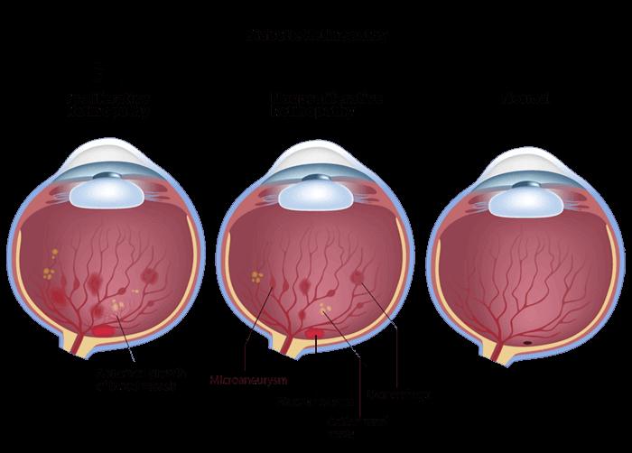 Diabetic Eye Diagram