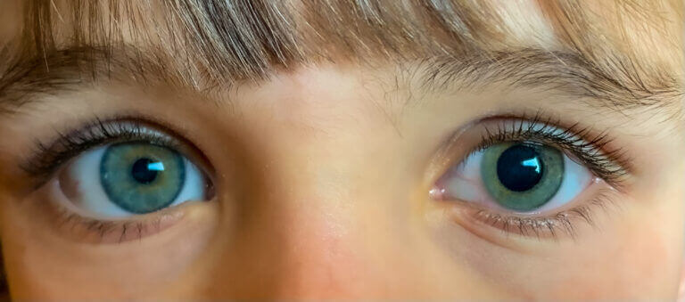 Close up of child's eyes with one of them dilated