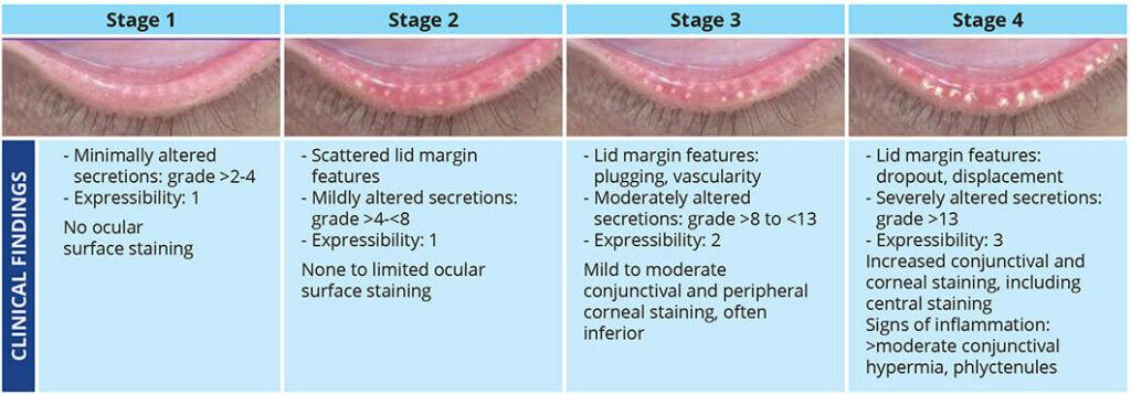 I-Lux procedure chart