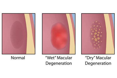 Types of Macular Degeneration