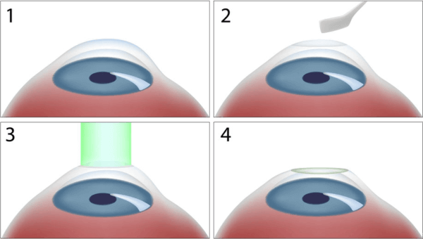 PRK Procedure diagram